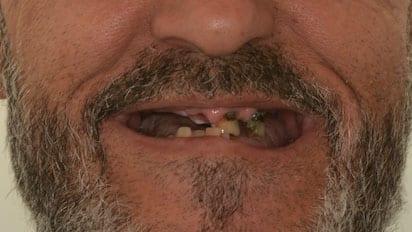 caso real estado antes de los implantes dentales