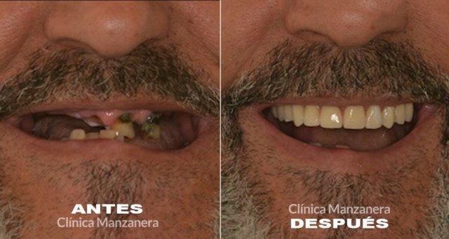 implantes de carga inmediata antes y después