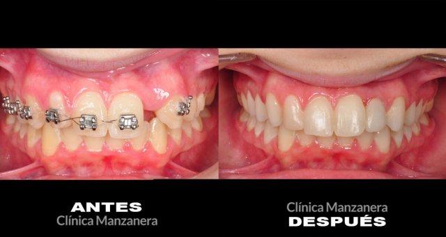 agenesia dental valencia