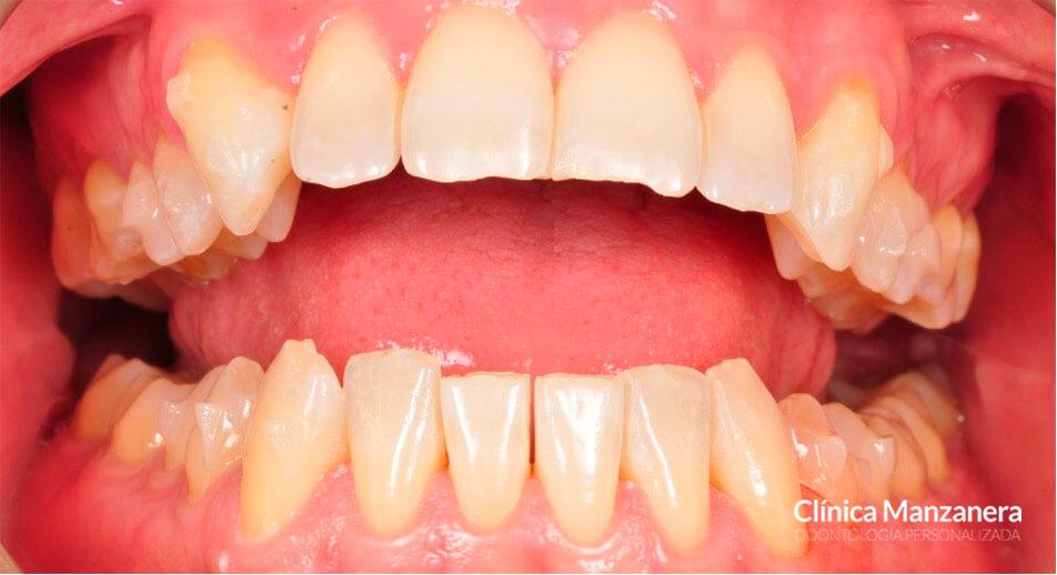 caso real bruxismo y desgaste dental tratado con invisalign