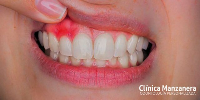 encias inflamadas odontologia