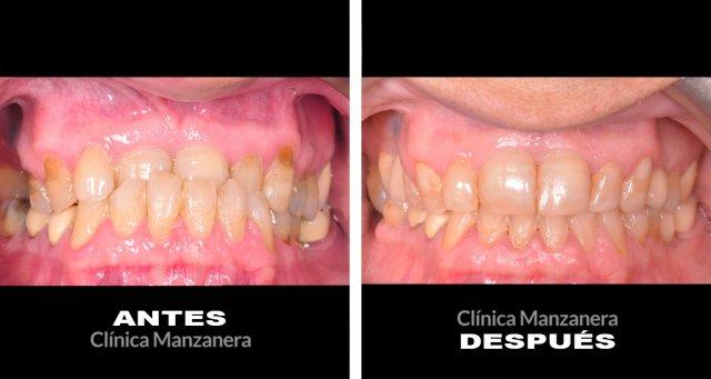 70 anos dientes desgastados, ausencias dentarias antes y despues implantes