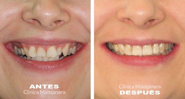 apinamiento caso resuelto con ortodoncia invisible