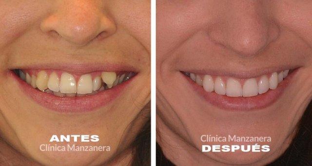 apinamiento caso resuelto con ortodoncia lingual