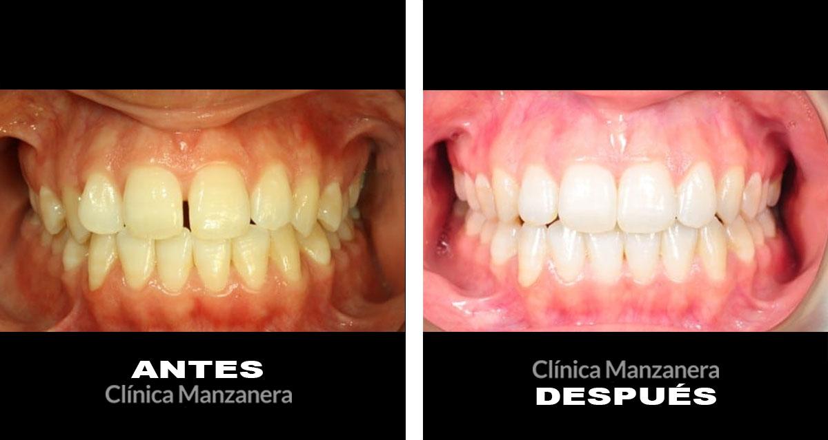 caso antes y despues separacion dientes resuelto con ortodoncia lingual