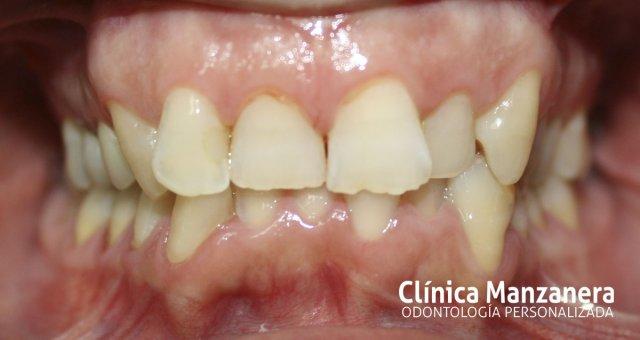 caso inicial apinamiento dientes hacia atras