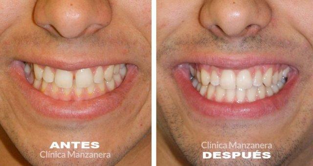 foto antes y después caso diastema o espacio entre los dientes