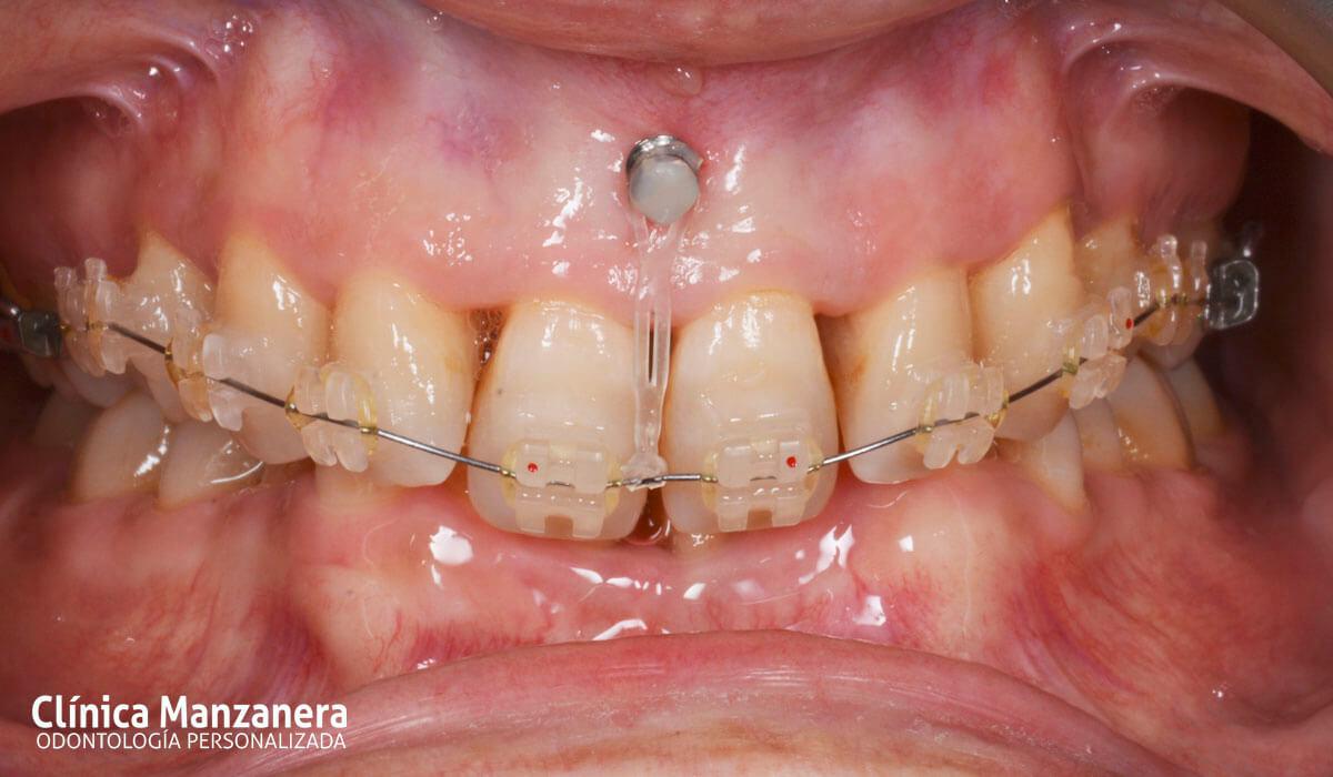 Inicial intraoral microtornillo 6
