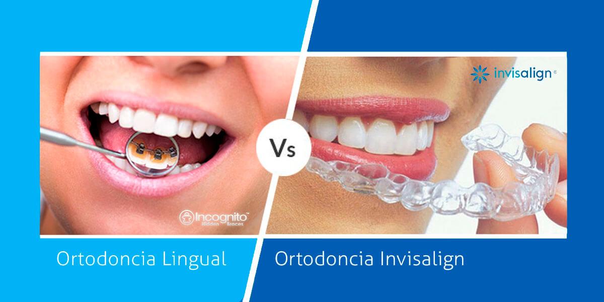 ortodoncia lingual vs invisalign