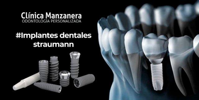 implantes dentales straunman
