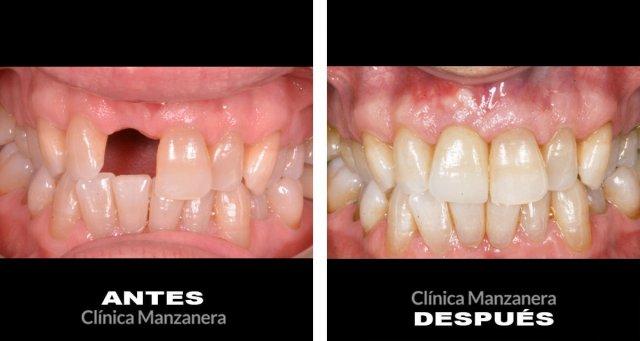 Antes y después perdida dental resuelta con implantes dentales