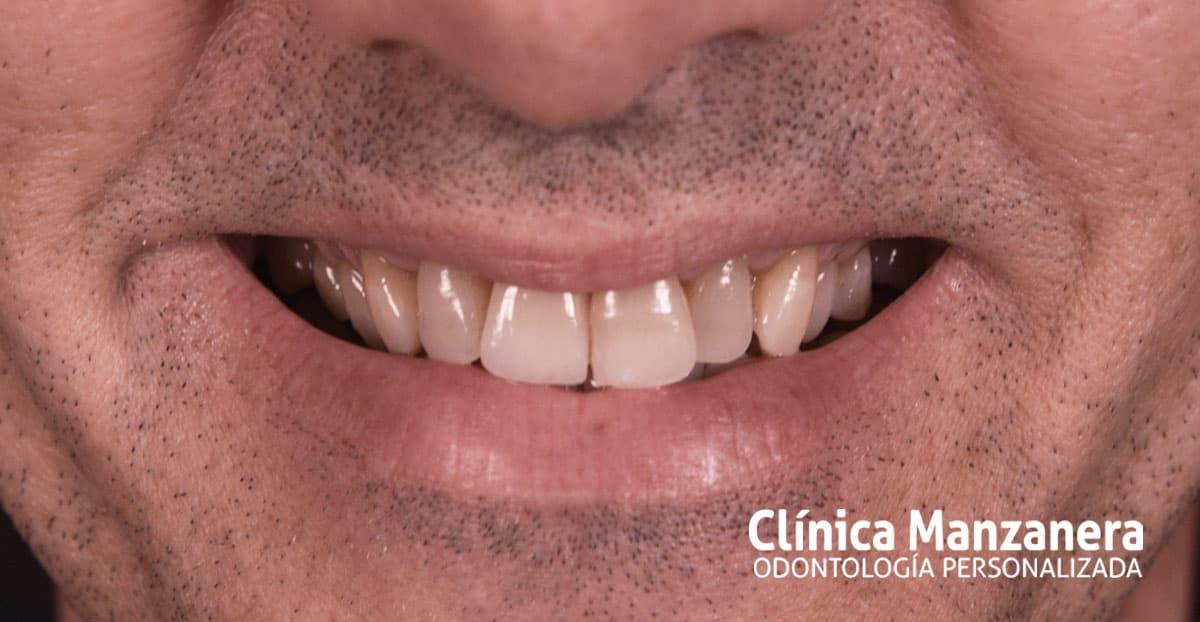 resultado final recuperación dental con implantes dentales
