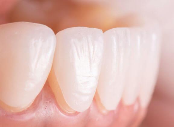 carillas dentales porcelana (1)