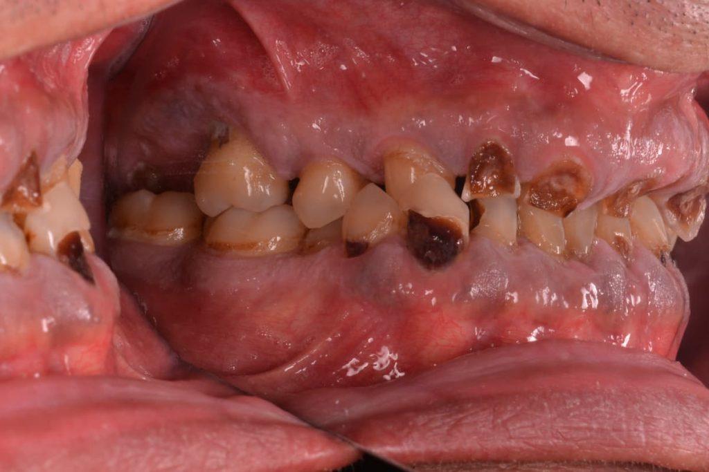 antes rehabilitación oral