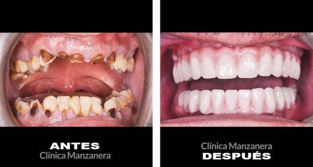 caso rehabilitación oral completa