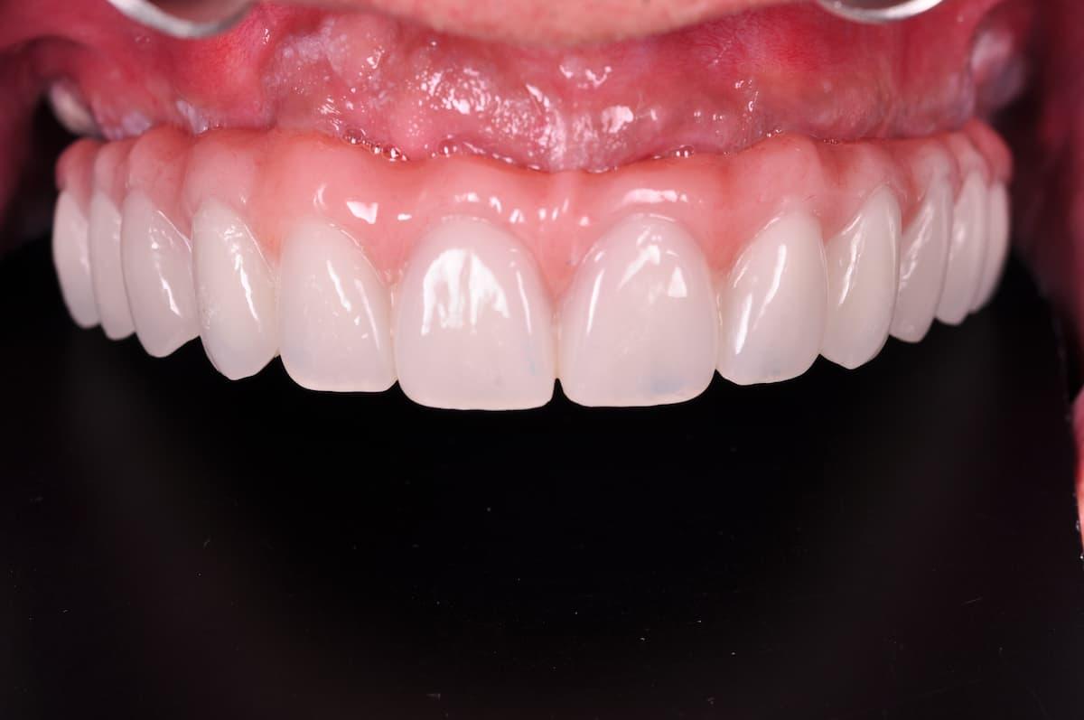 prótesis fija 3