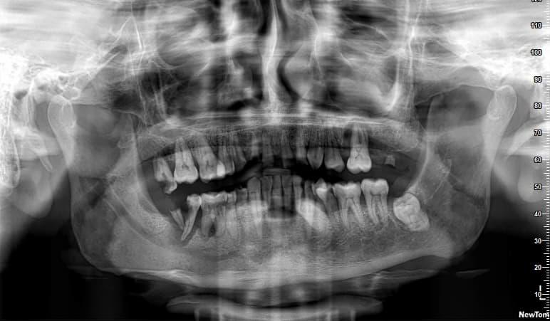 radiografía rehabilitación completa