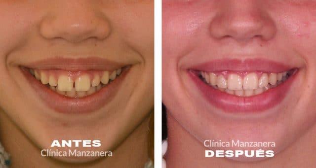 cierre de dientes diastema adolescente