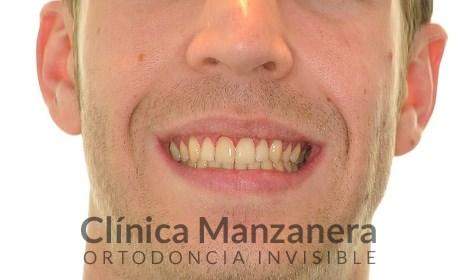 ortodoncia lingual y minitornillos
