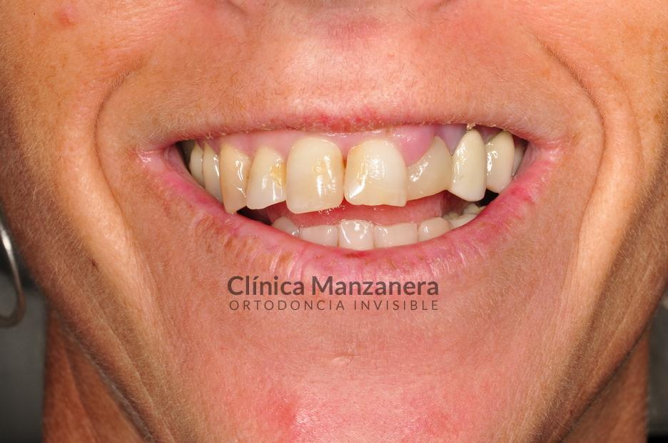 Carillas superiores e implante dental