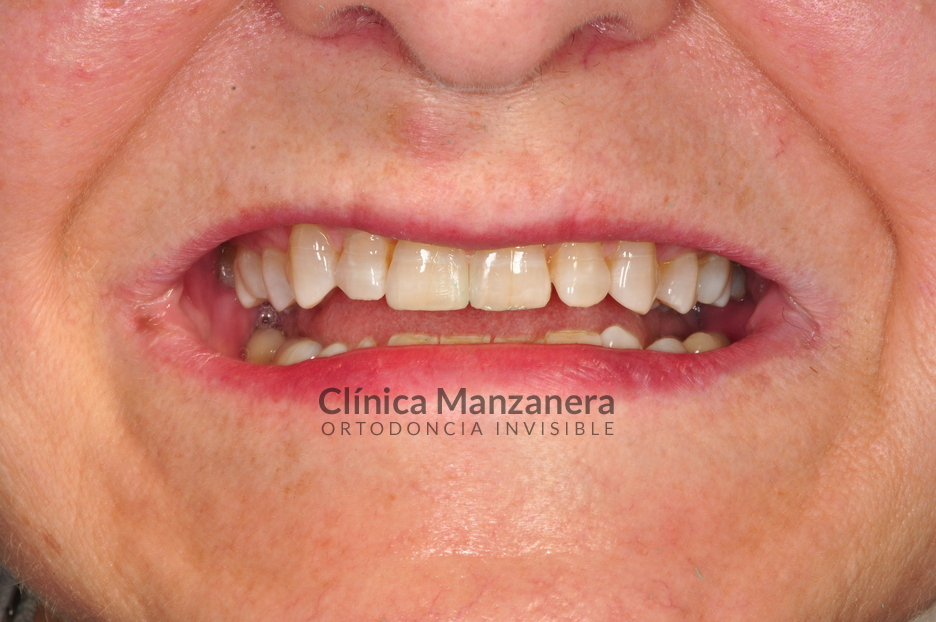 estetica dental espacios
