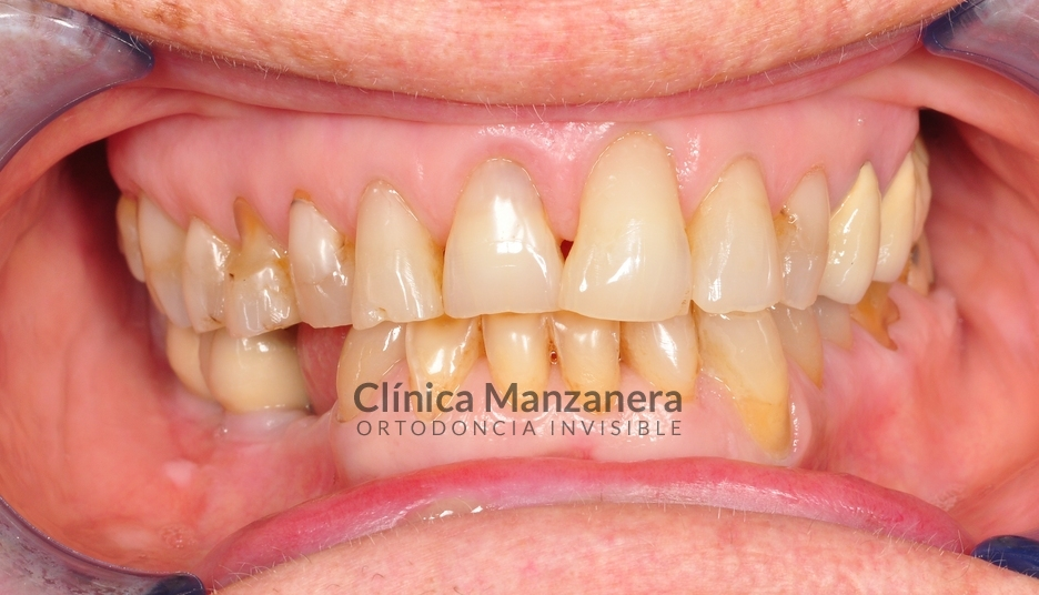 estetica dental valencia