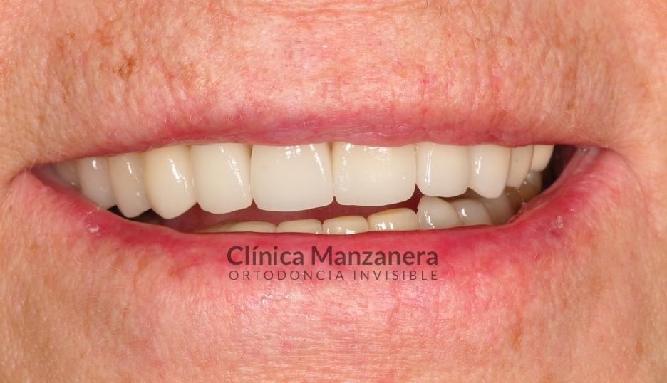 caso resuelto estetica dental