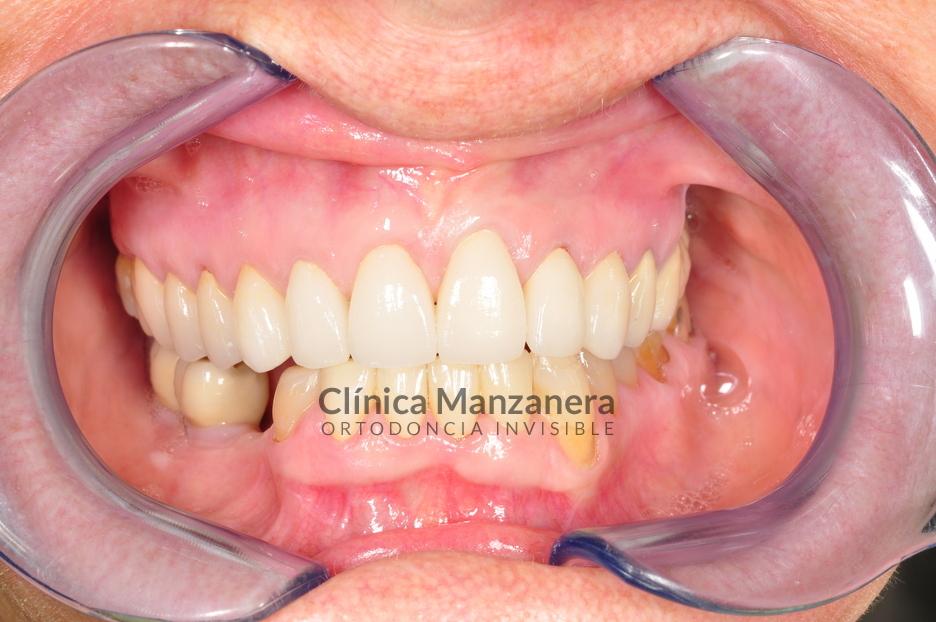 estetica dental coronas y carillas