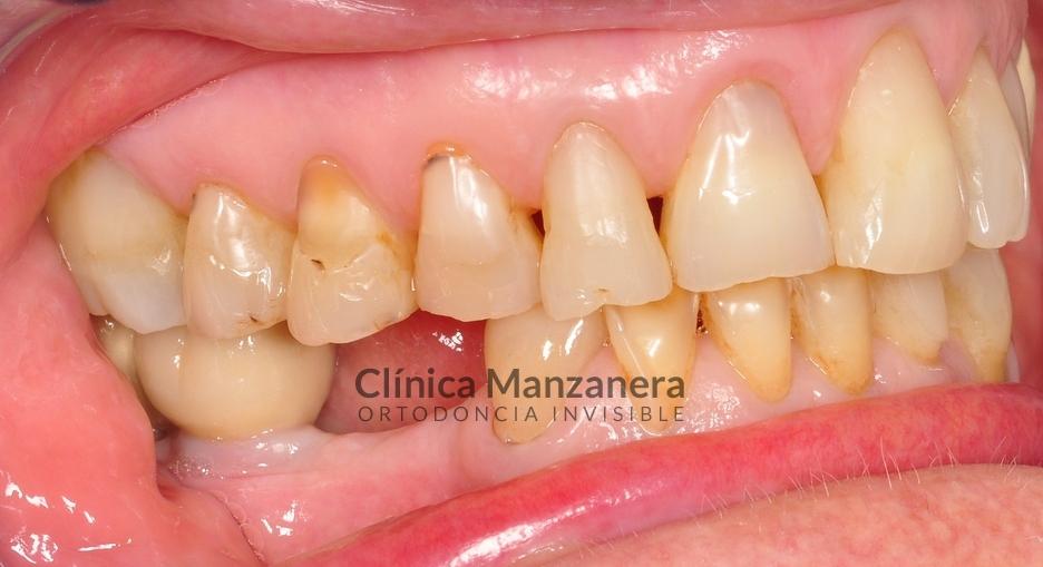 caso tratado estetica dental